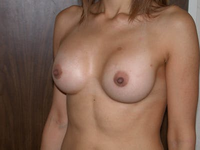 Breast Augmentation Gallery - Patient 4757403 - Image 8