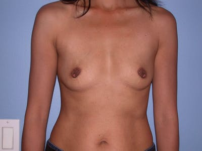 Breast Augmentation Gallery - Patient 4757405 - Image 18