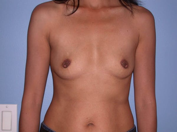 Breast Augmentation Gallery - Patient 4757405 - Image 1