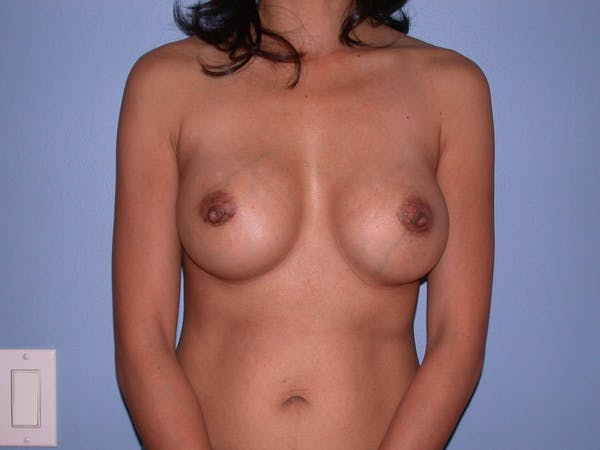 Breast Augmentation Gallery - Patient 4757405 - Image 2