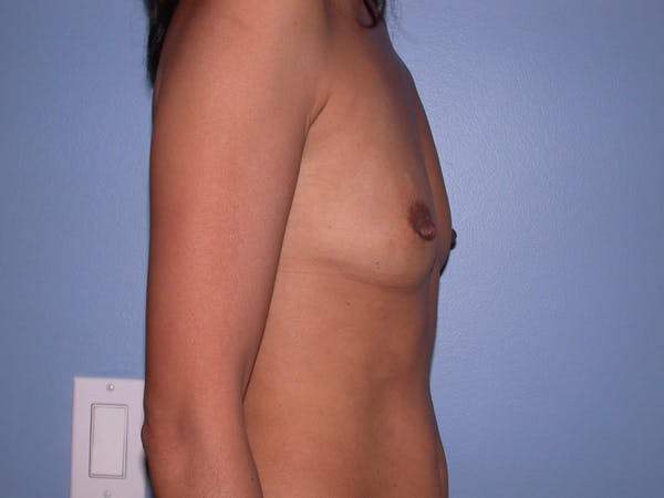 Breast Augmentation Gallery - Patient 4757405 - Image 3