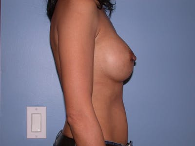 Breast Augmentation Gallery - Patient 4757405 - Image 4
