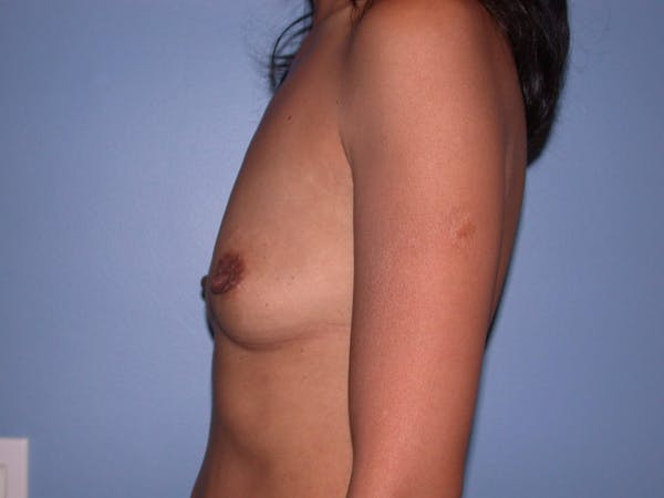 Breast Augmentation Gallery - Patient 4757405 - Image 5