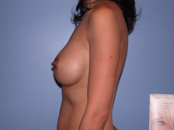 Breast Augmentation Gallery - Patient 4757405 - Image 6