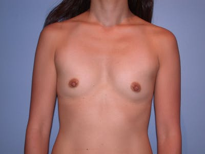 Breast Augmentation Gallery - Patient 4757408 - Image 19