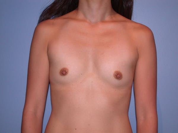 Breast Augmentation Gallery - Patient 4757408 - Image 1