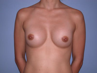 Breast Augmentation Gallery - Patient 4757408 - Image 2