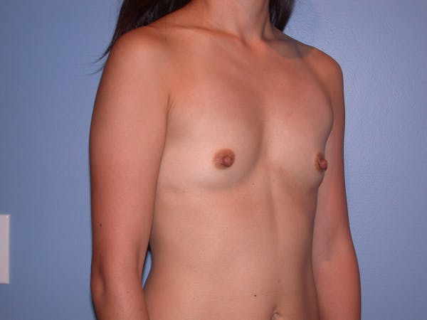 Breast Augmentation Gallery - Patient 4757408 - Image 3