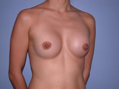 Breast Augmentation Gallery - Patient 4757408 - Image 4