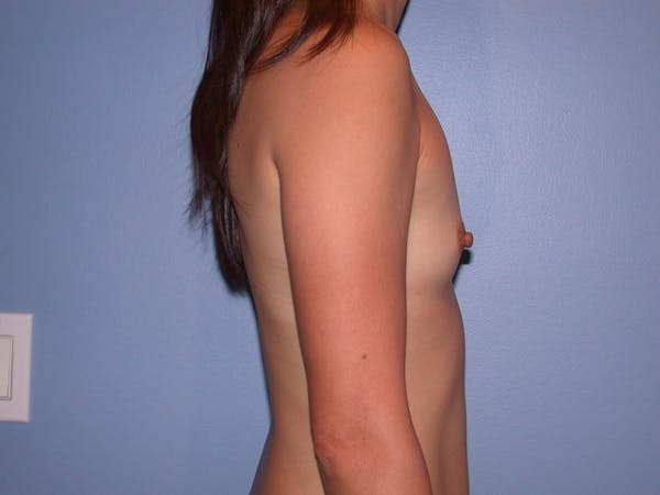 Breast Augmentation Gallery - Patient 4757408 - Image 5