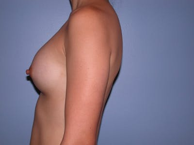 Breast Augmentation Gallery - Patient 4757408 - Image 8