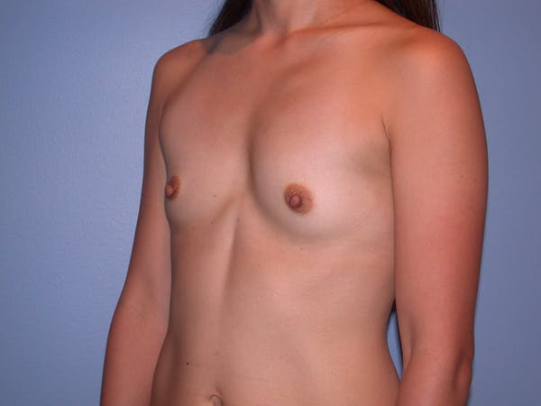 Breast Augmentation Gallery - Patient 4757408 - Image 9