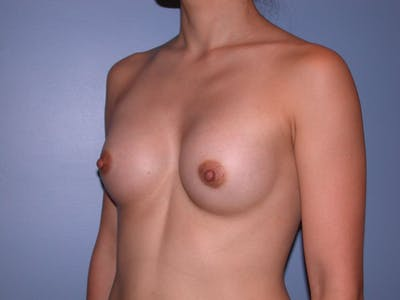 Breast Augmentation Gallery - Patient 4757408 - Image 10