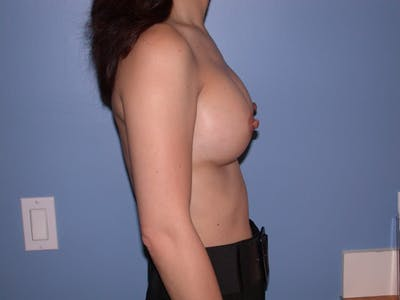 Breast Augmentation Gallery - Patient 4757503 - Image 4