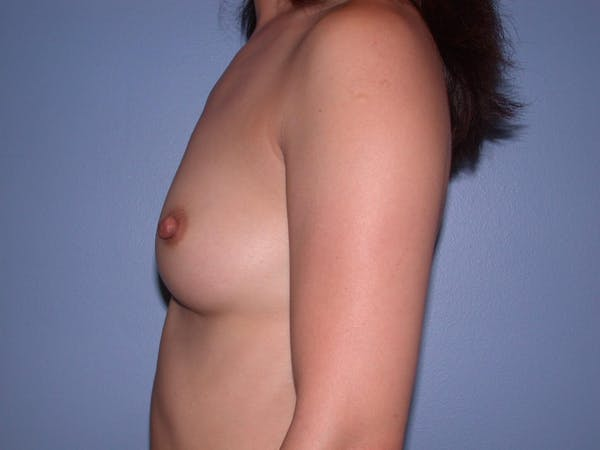 Breast Augmentation Gallery - Patient 4757503 - Image 5