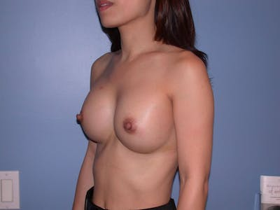 Breast Augmentation Gallery - Patient 4757503 - Image 8