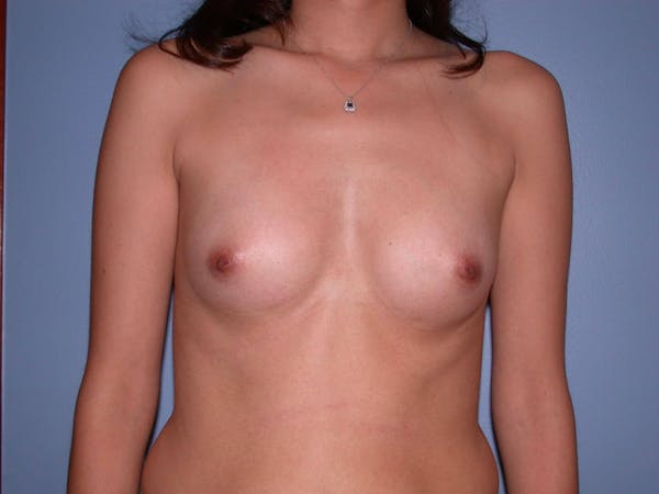 Breast Augmentation Gallery - Patient 4757507 - Image 1