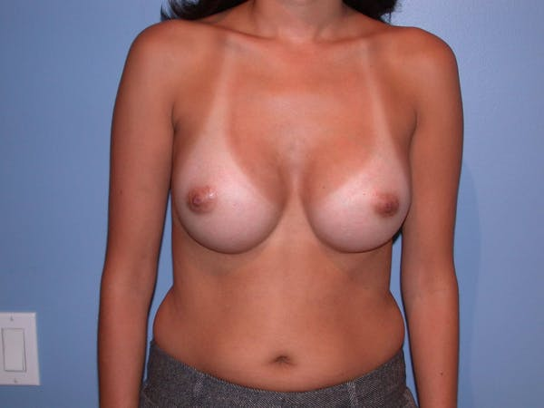 Breast Augmentation Gallery - Patient 4757507 - Image 2