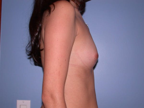 Breast Augmentation Gallery - Patient 4757507 - Image 3