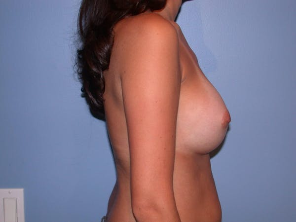 Breast Augmentation Gallery - Patient 4757507 - Image 4