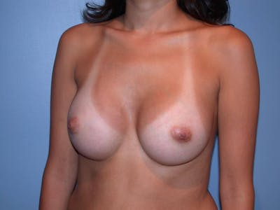 Breast Augmentation Gallery - Patient 4757507 - Image 8