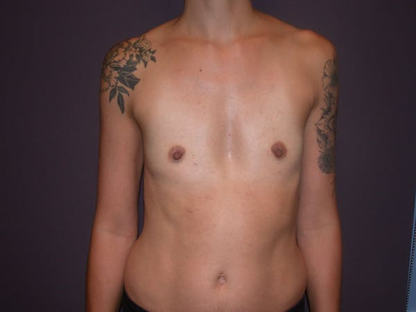 Breast Augmentation Gallery - Patient 4757509 - Image 1