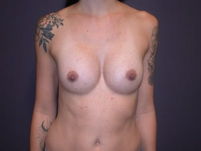 Breast Augmentation Gallery - Patient 4757509 - Image 2