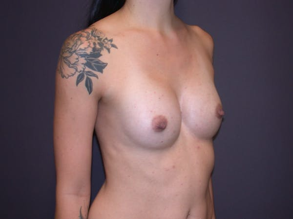 Breast Augmentation Gallery - Patient 4757509 - Image 4
