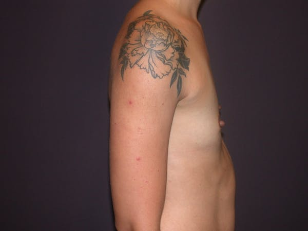 Breast Augmentation Gallery - Patient 4757509 - Image 5