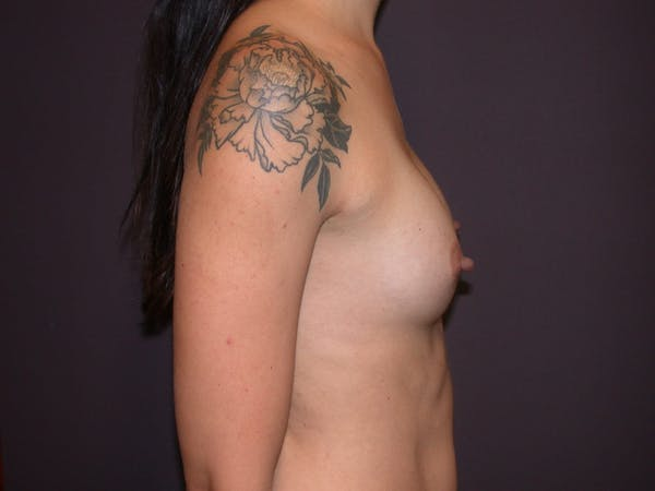 Breast Augmentation Gallery - Patient 4757509 - Image 6