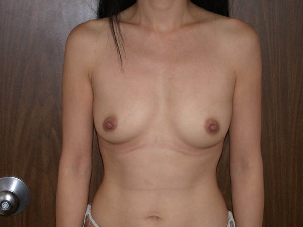 Breast Augmentation Gallery - Patient 4757510 - Image 1