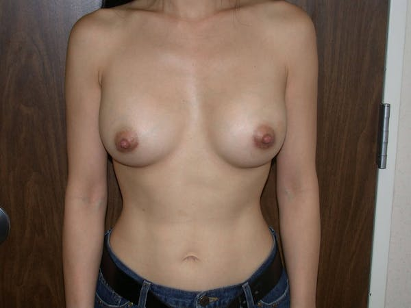 Breast Augmentation Gallery - Patient 4757510 - Image 2