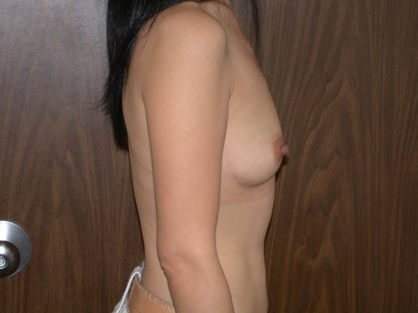Breast Augmentation Gallery - Patient 4757510 - Image 3