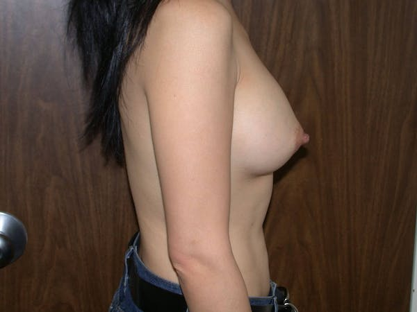 Breast Augmentation Gallery - Patient 4757510 - Image 4