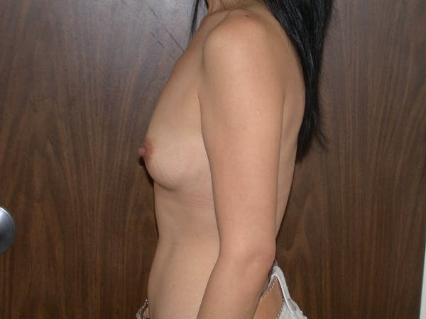 Breast Augmentation Gallery - Patient 4757510 - Image 5