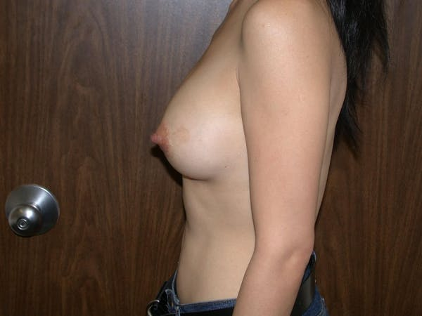 Breast Augmentation Gallery - Patient 4757510 - Image 6