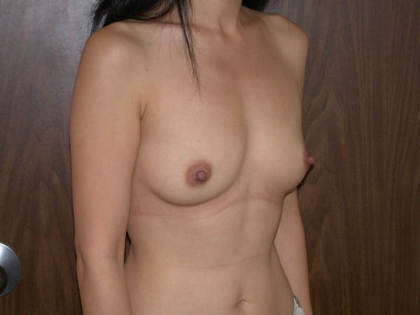 Breast Augmentation Gallery - Patient 4757510 - Image 7