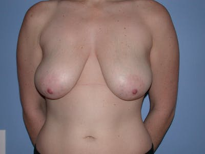 Breast Augmentation Gallery - Patient 4757511 - Image 25