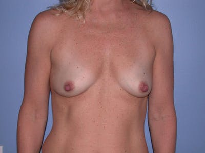 Breast Augmentation Gallery - Patient 4757512 - Image 24