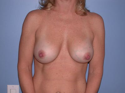 Breast Augmentation Gallery - Patient 4757512 - Image 2
