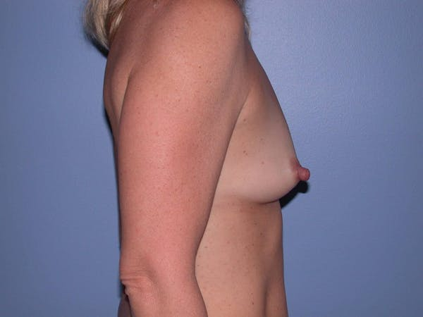 Breast Augmentation Gallery - Patient 4757512 - Image 3