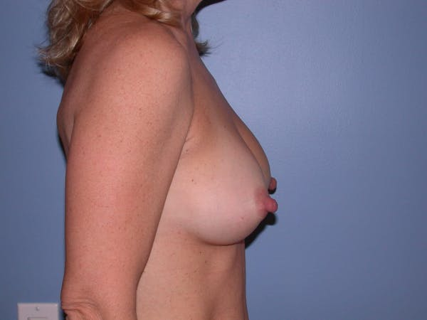 Breast Augmentation Gallery - Patient 4757512 - Image 4