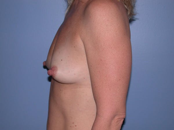 Breast Augmentation Gallery - Patient 4757512 - Image 5