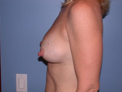Breast Augmentation Gallery - Patient 4757512 - Image 6