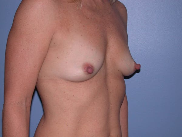 Breast Augmentation Gallery - Patient 4757512 - Image 7