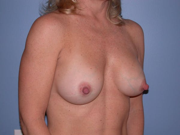Breast Augmentation Gallery - Patient 4757512 - Image 8