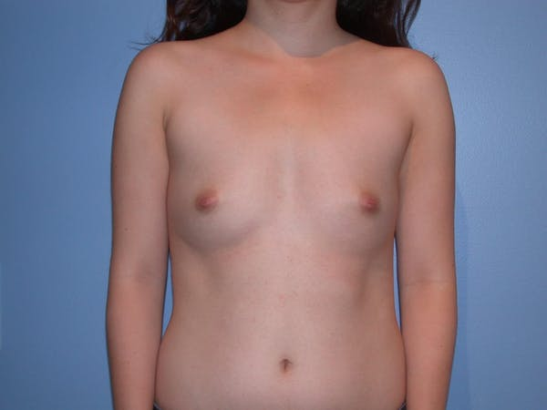 Breast Augmentation Gallery - Patient 4757521 - Image 1