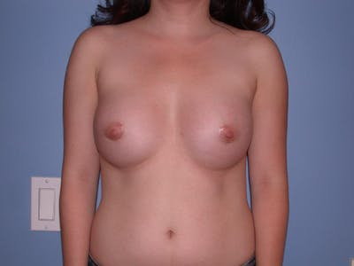 Breast Augmentation Gallery - Patient 4757521 - Image 2