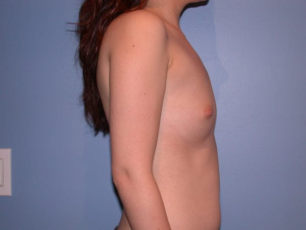 Breast Augmentation Gallery - Patient 4757521 - Image 3