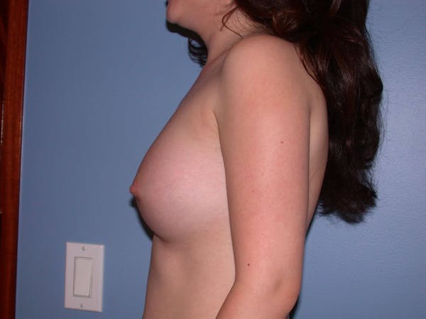 Breast Augmentation Gallery - Patient 4757521 - Image 6